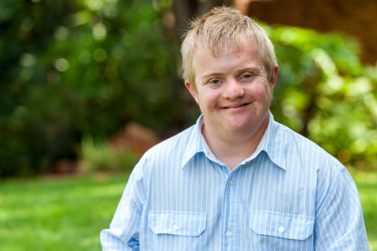 Handsome Down Syndrome Young Adult
